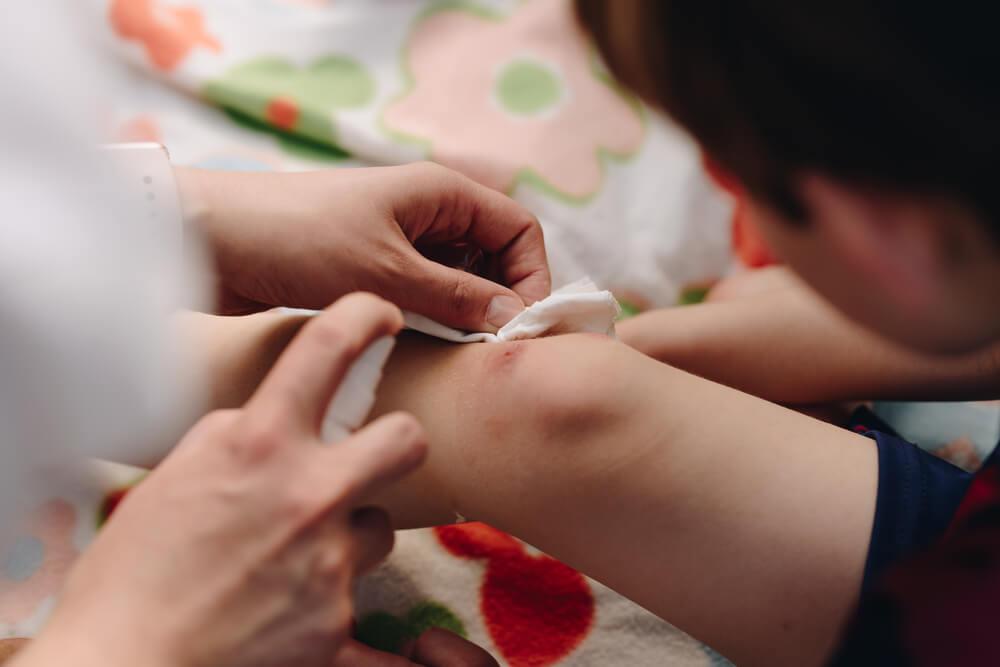 Persona haciendo una curación en rodilla de niño