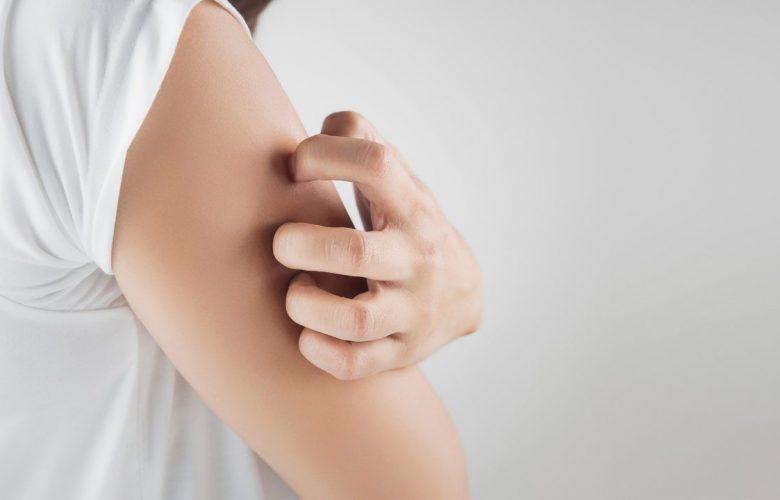 trata la dermatitis atopica