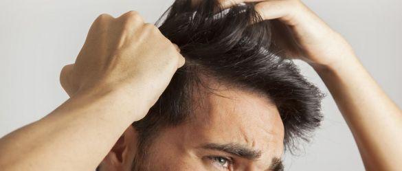 la alopecia en hombres