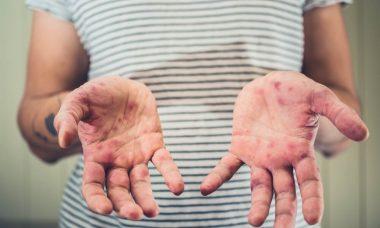 problemas con la varicela