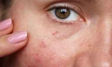 cuidado de la piel con manchas