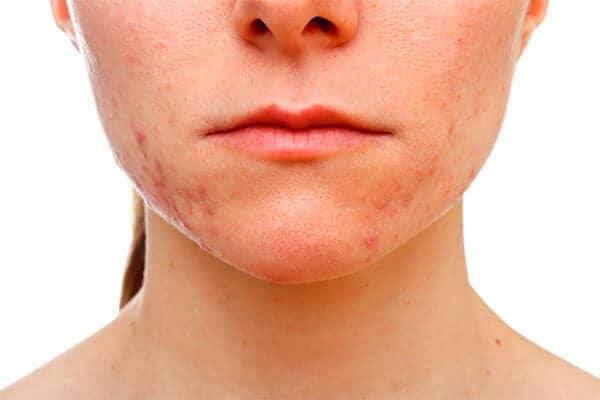 acné en la barbilla