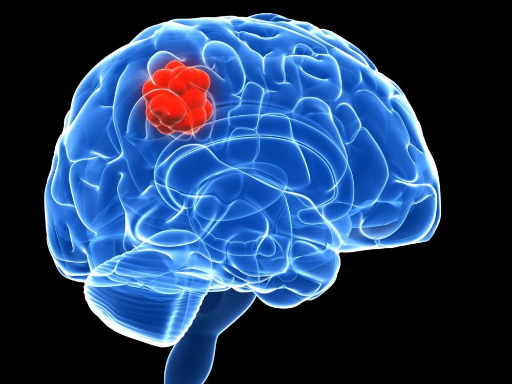 problemas con el tumor cerebral